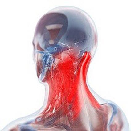 Nyakfájdalom kezelése
